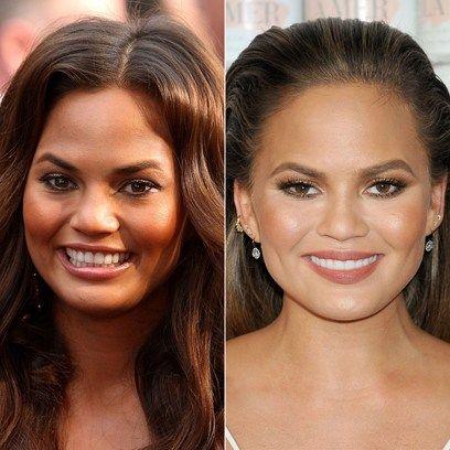 Celebrity Sexy Teeth: Does Celebrity Sexy Teeth Work?