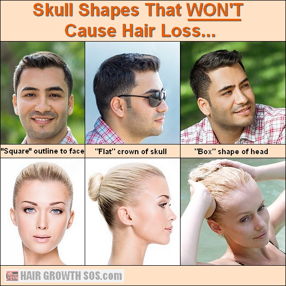 Domed Shaped Head Your Skull Shape Is What Causes Hair Loss