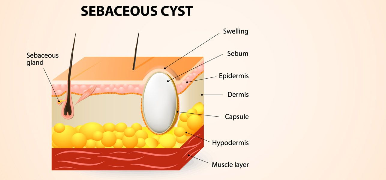 are you suffering from sebaceous cysts? do they keep recurring leaving you  in pain? these cysts are harmless most of the times, but sometimes can get