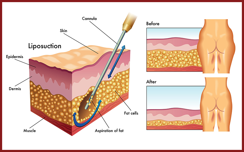 Pin On Complete Guide To Liposuction With Costs Benfits