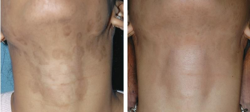 Fraxel Laser Resurfacing for the removal of skin ...