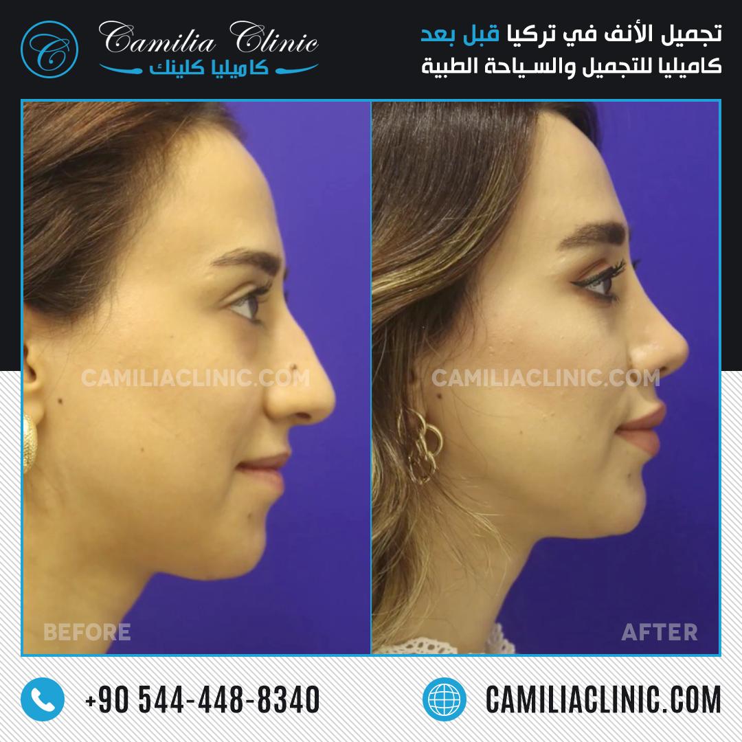 Before After Rhinoplasty Istanbul Rhinoplasty Plastic Surgery Clinic