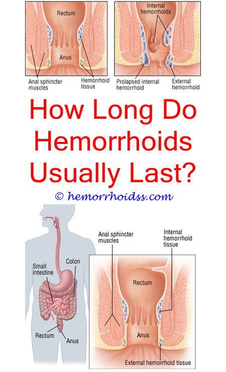 how to make a sitz bath for hemorrhoids