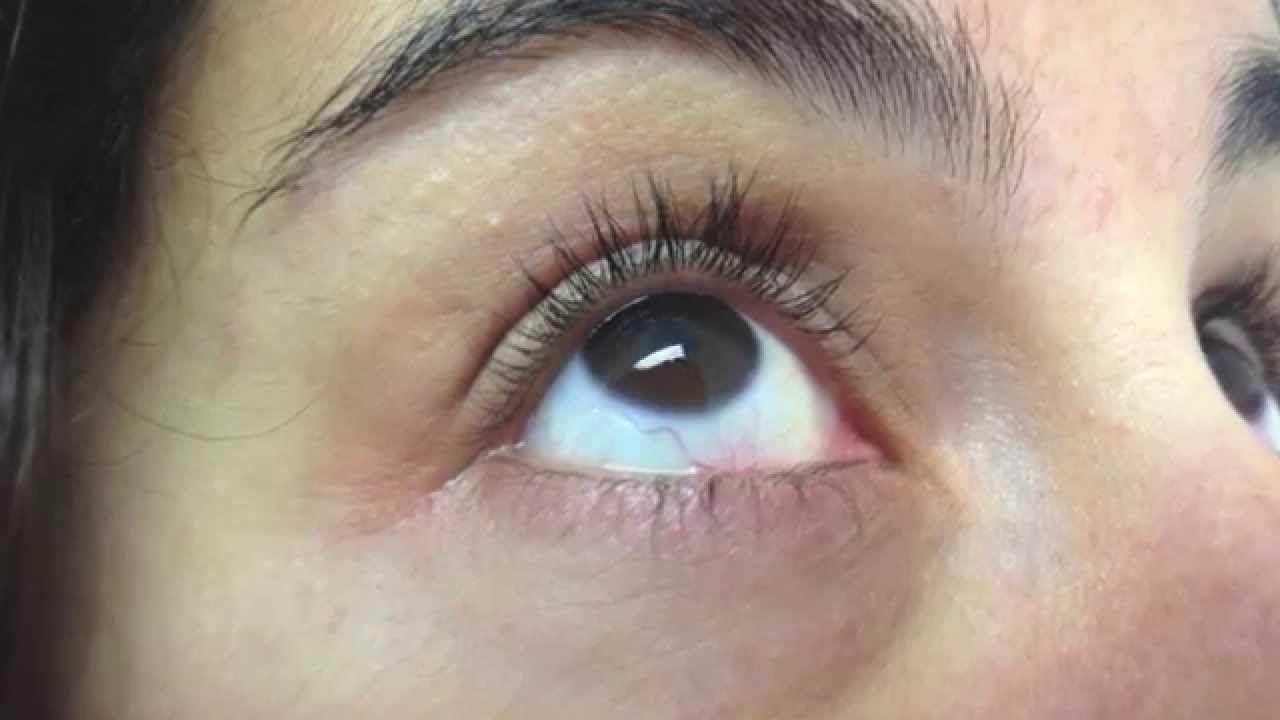 Remedios para el glaucoma