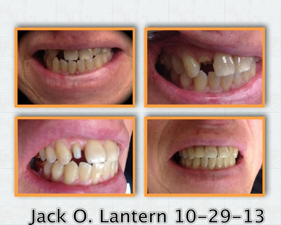 This patient came in today having broken off his front tooth while ...