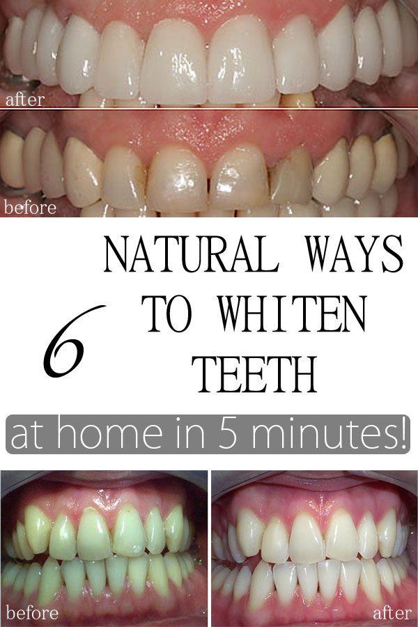 6 Ways To Naturally Whiten Your Teeth Beauty Pinterest