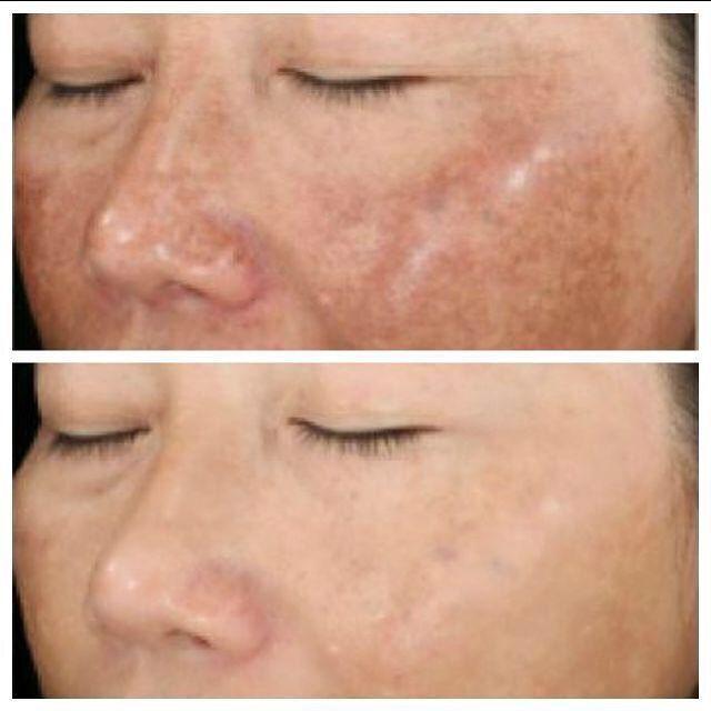 Fraxel Laser Philadelphia Face Skin Care Skin Discoloration Face Skin