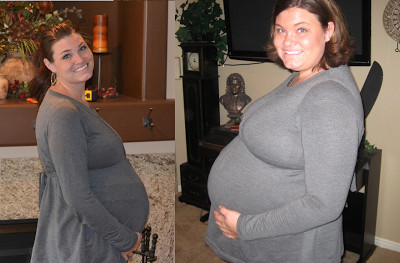 After gastric bypass surgery can you get pregnant