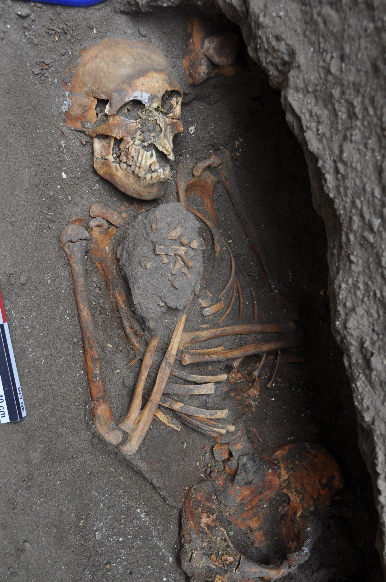 Mass Grave Reveals Ottoman Soldiers Fought To The Death In 16th Century Romania