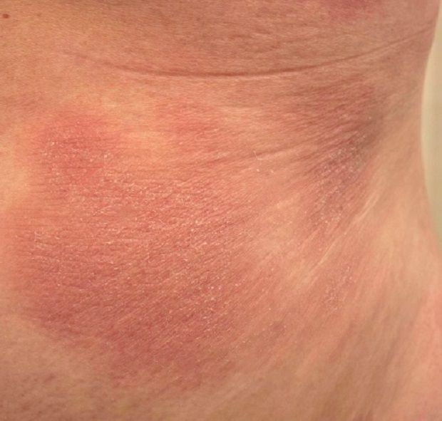 Could I Have A Skin Lymphoma?