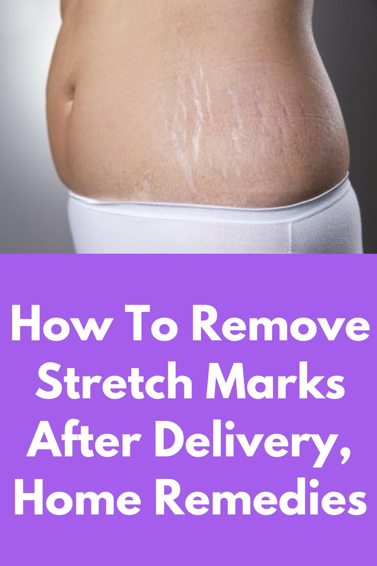 Skin Care Advice That Can Really Help You Stretch Marks Stretch Mark Removal Severe Acne Remedies