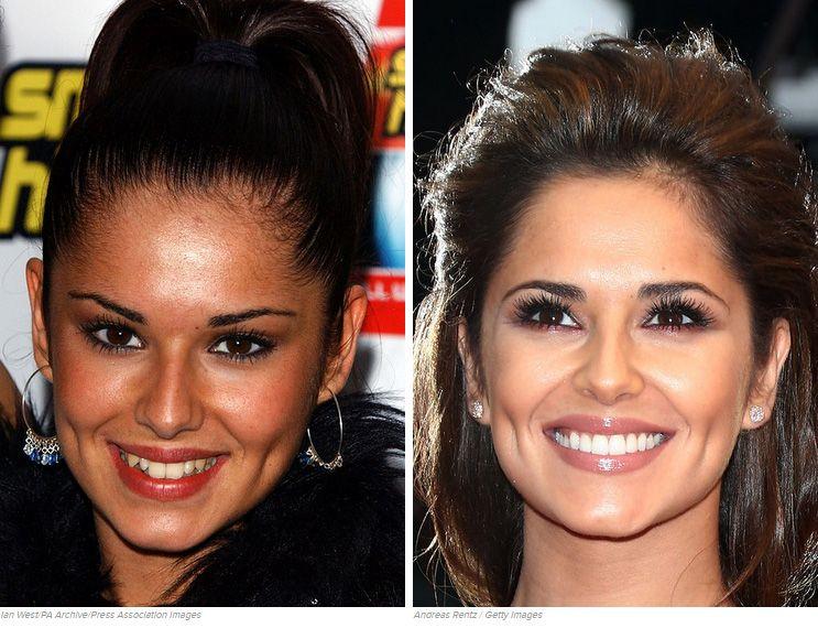 13 Fake Teeth Celebs Before And After Nice teeth