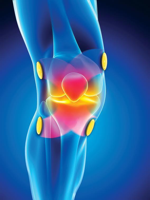 Remède - Causes et traitements des douleurs articulaires des gencives | Crest |  Acide hyaluronique gélules