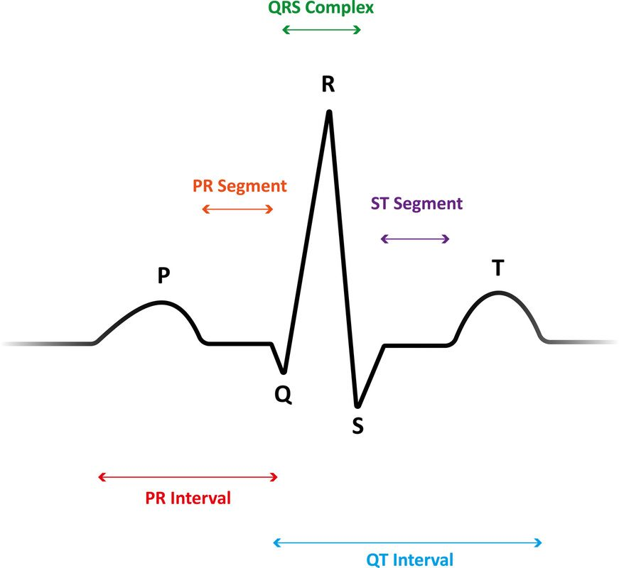 interpret ekgs strips like a boss   ekg interpretation for