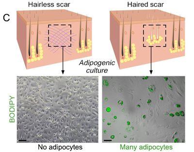 Hackean el proceso de cicatrización en la piel para no dejar marcas -- Puede que no hay mucho que hacer para las cicatrices que ya están allí, pero los investigadores han descubierto cómo hacer que las heridas frescas cicatric
