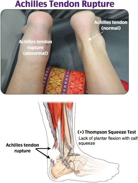 Achilles Tendon Rupture Splint