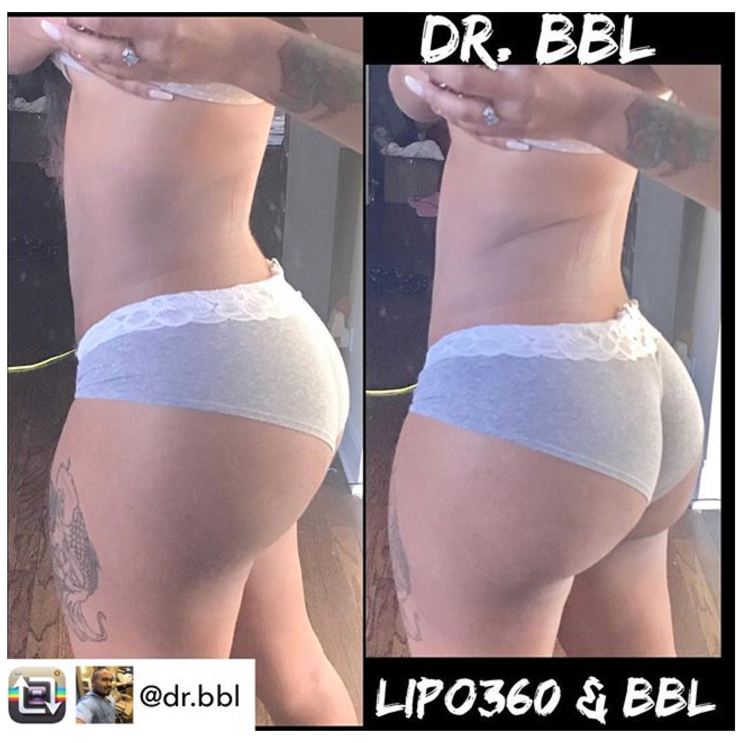 Repost From Dr Bbl Dr Balgobin Making New Instagram Models Everyday Consistency Res Body Contouring Surgery Brazilian Buttlift Brazilian Buttlift Surgery