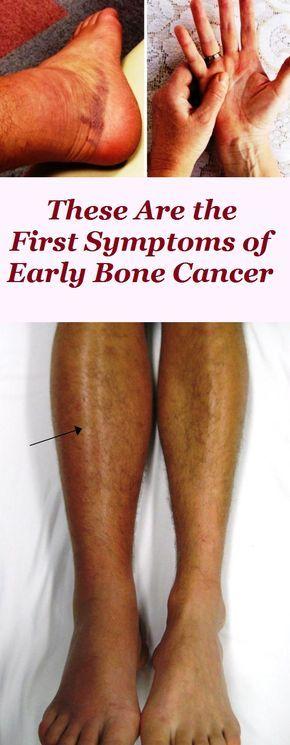 sarcoma cancer warning signs)