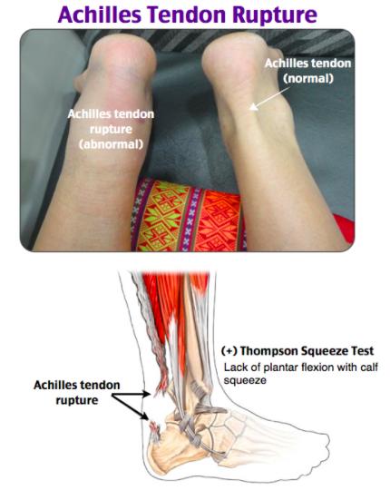 Rosh Review Orthopedic Nursing Achilles Tendon Ruptures