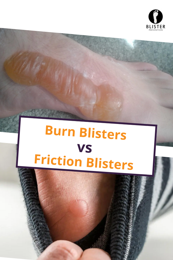 Burn Blister Versus Friction Blister Blister Prevention Blisters Burn Blister Treatment Blister Treatment
