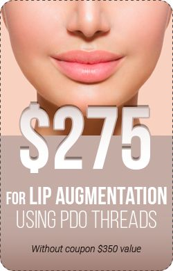 SPECIAL OFFER on all PDO thread lift procedures in Queens