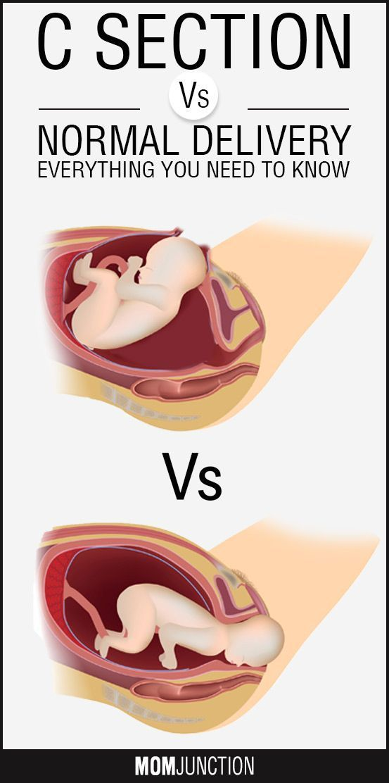 Pin on Surviving Pregnancy