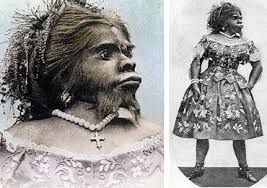 Hypertrichosis Google Search Bearded Lady Mexican Women Ancient Astronaut Theory