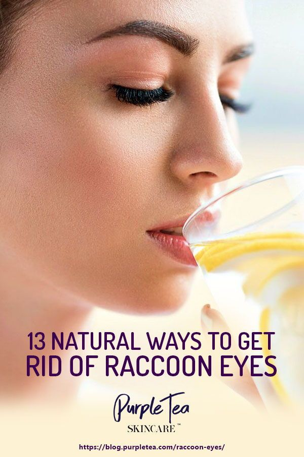 13 Natural Ways To Get Rid Of Raccoon Eyes (With images ...