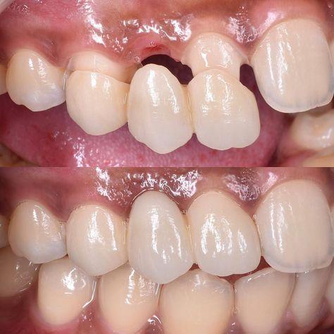 29 Ideas De D1 Odontología Dental Odontologo