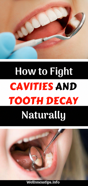 How to Fight Cavities and Tooth Decay Naturally  #cavities #toothdecay #dentalcare #homeremedies #health #healthy #healthcare #wellness #OralHealthCareTips #WhatIsOralHealthCare #WhoOralHealthCare