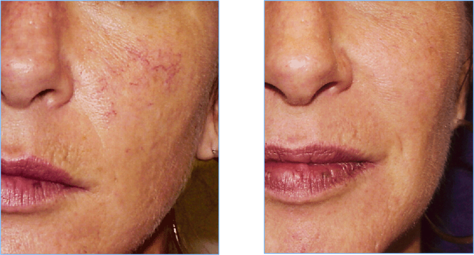 Before And After Vascular Laser Treatments Vascularlaser Vbeam