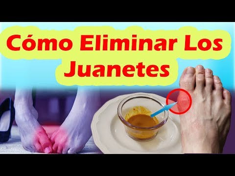 Pin De Ms Moreno En Rheumatoid Arthritis Remedios Para Juanetes Como Curar Los Juanetes Juanetes