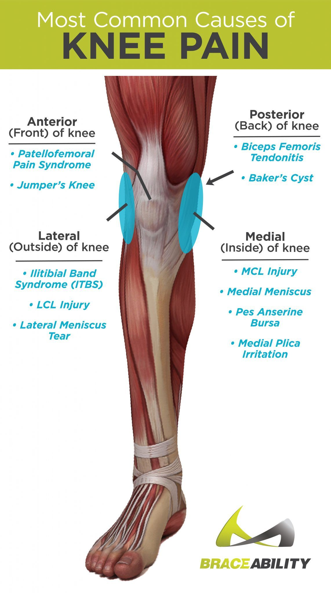 The Most Common Causes Of Anterior Posterior Medial And Lateral Knee Pain