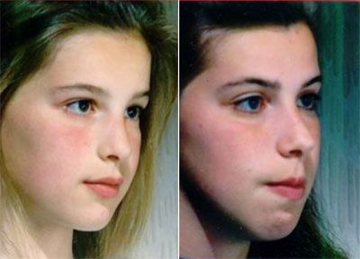 picture of young teenage girl with nasal obstruction before and after surgery