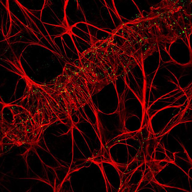 Wistar Rat Retina Outlining The Retinal Vessel Network And