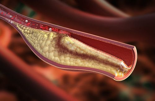 Does dental plaque cause atherosclerosis?