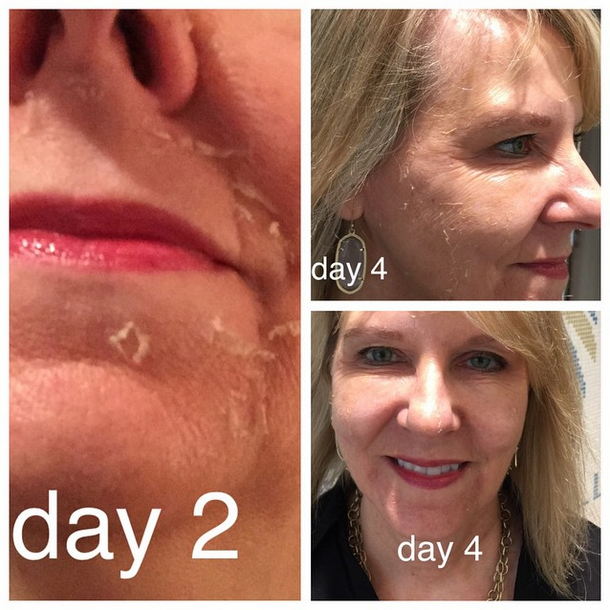 Quot I Am Loving The Results Of Che S 3 Step Peel Che Is The