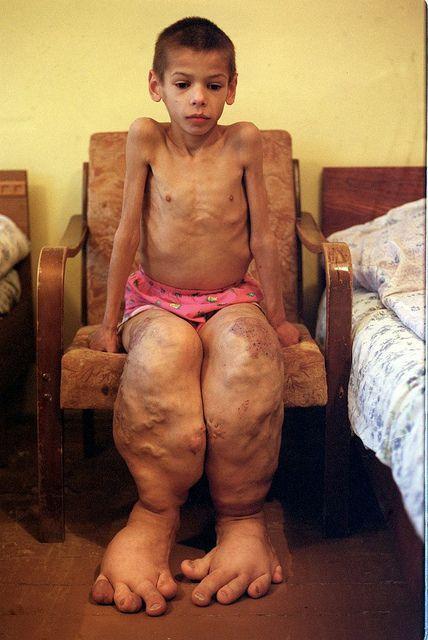 Birth deformity caused by radiation exposure. Chernobyl ...