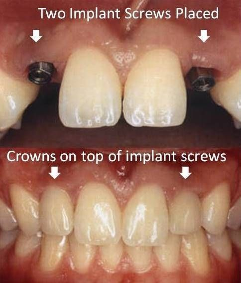 Dentaltown Most Epic Before After Dental Implants Cases Dental Tooth Implant Cost Teeth Implants