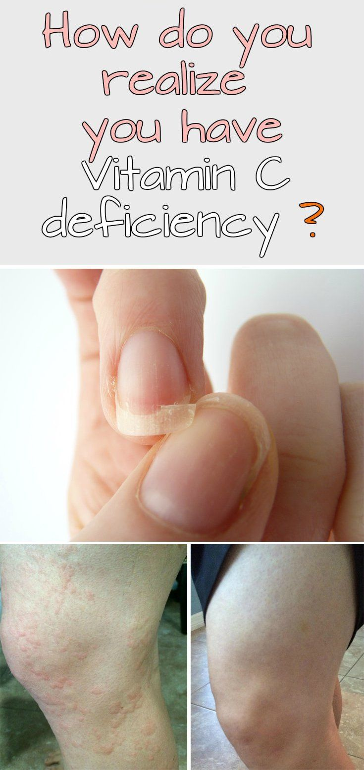 How do you realize you have vitamin c deficiency do it yourself how do you realize you have vitamin c deficiency who knew my flakey nails could be from a vitamin c deficiency solutioingenieria Images