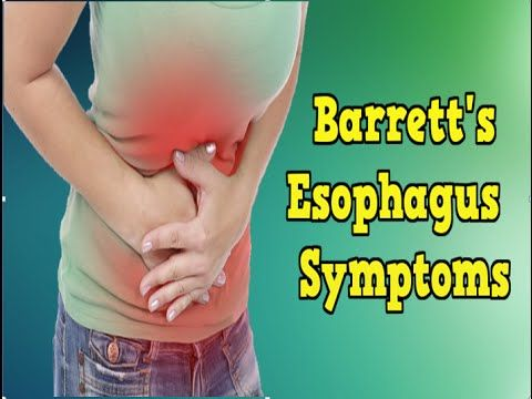 What is the best Barrett's esophagus diet?