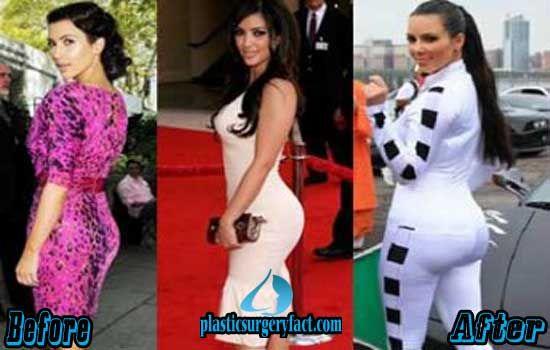 Kim Kardashian Butt Implants Before and After | http://plasticsurgeryfact.com/kim-kardashian-plastic-surgery-before-and-after-photos/