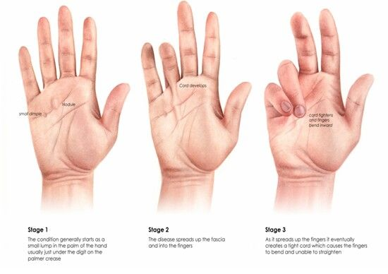 Dupytrens contracture