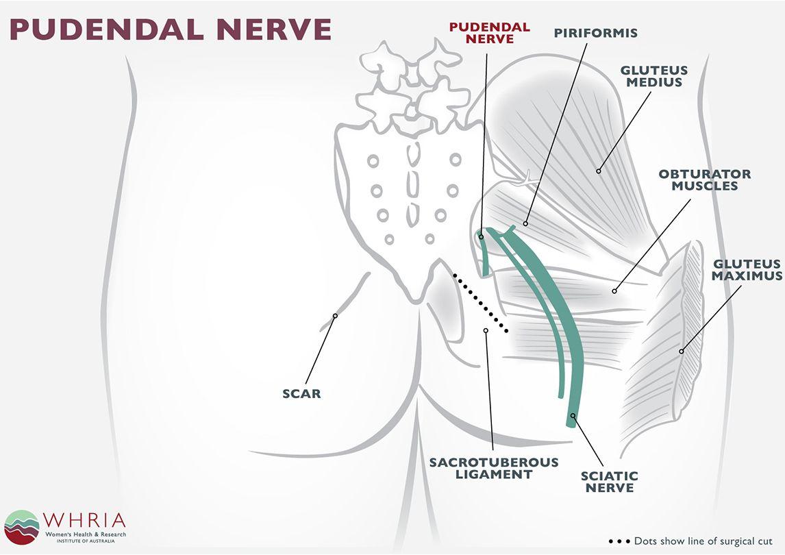 Kds pudenda vaginal clitoral surgery picture 69