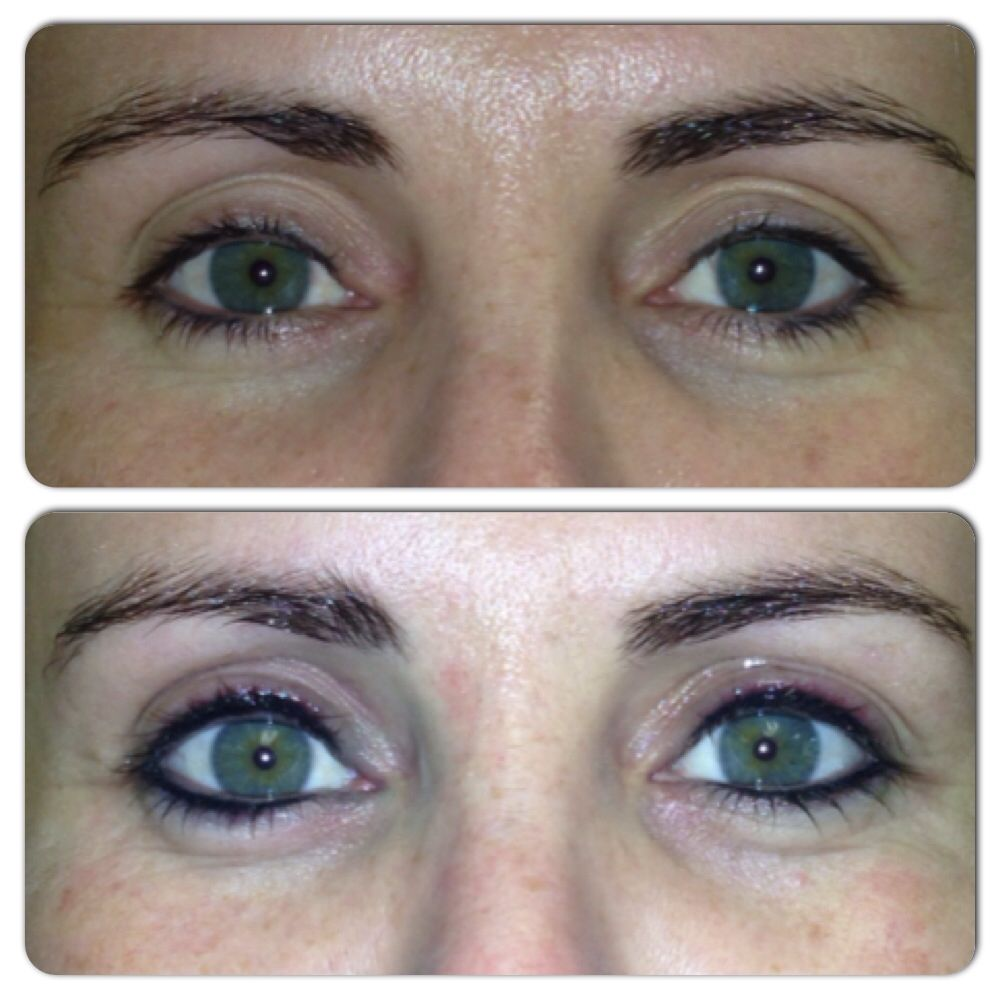 Before And Directly After Doing Permanent Eyeliner Top Bottom Permanent Eyeliner Permanent Makeup Eyeliner