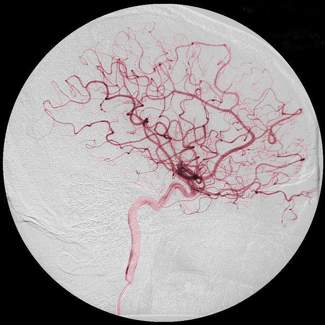 The Flower in my Mind | Blood vessels, Brain and Blood