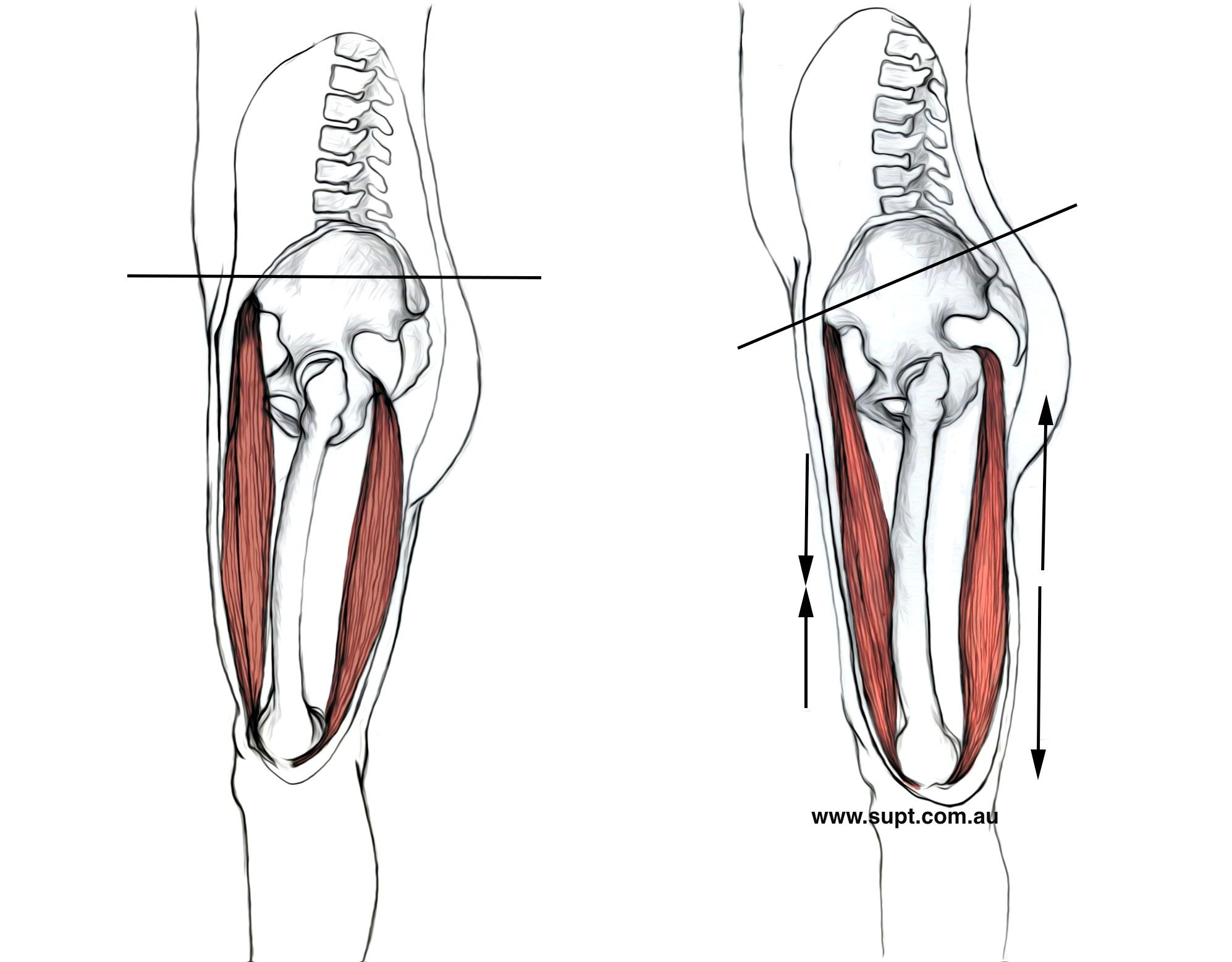 Image result for muscles anterior pelvic tilt | Posture and Yoga ...
