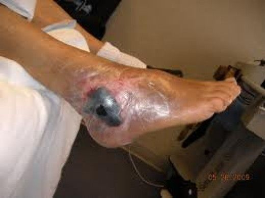 Wound Vac Therapy Information Pictures And Cost Best Practice