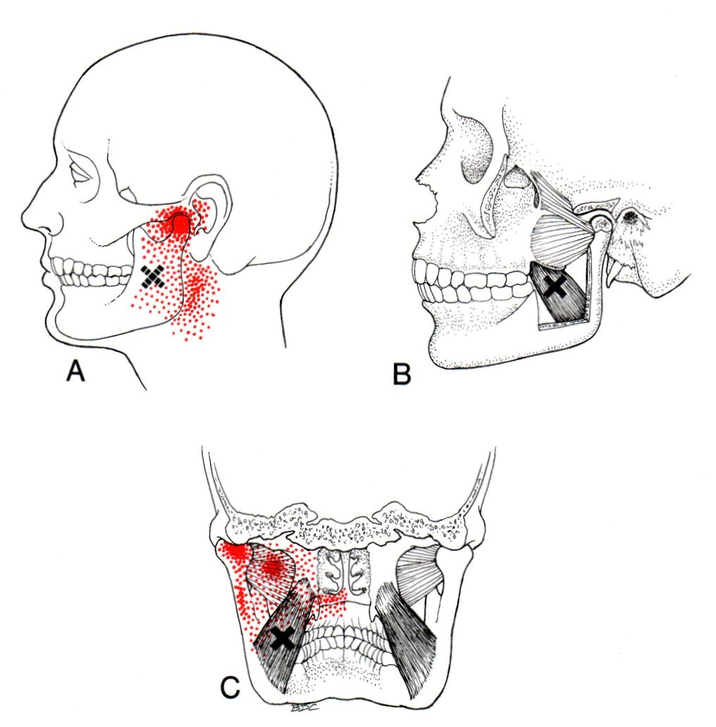 Medial pterygoid the trigger point referred pain guide medial pterygoid trigger point diagram pain patterns and related medical symptoms the myofascial pain pattern has pain locations that are displayed in red pooptronica