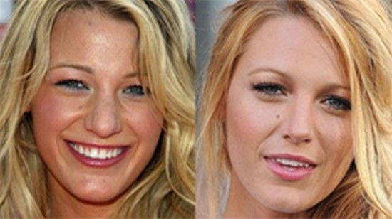 Blake Lively nose job | plastic surgery | Blake lively ...
